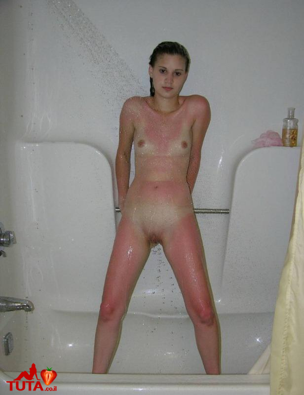 sunburned10.jpg